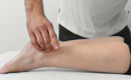 דיקור סיני ברגל כחלק מטיפול בכאב